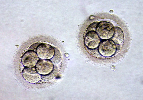 Embryo Transfer (ET) 1